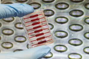 Microwells used for circulating tumor cell culture